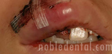 TRAUMA - FRACTURED INCISALLY AND DISTO LABIALLY
