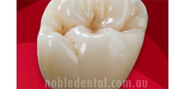 bi-axial-implant